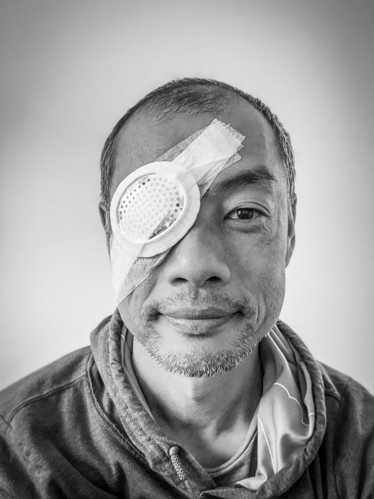 A black and white portrait of a Chinese man. He has a metal eye patch on his right eye. He wears a hoodie.
